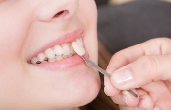 A porcelain veneer being placed on a tooth