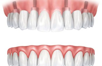 An illustration of a traditional denture and an implant-supported denture
