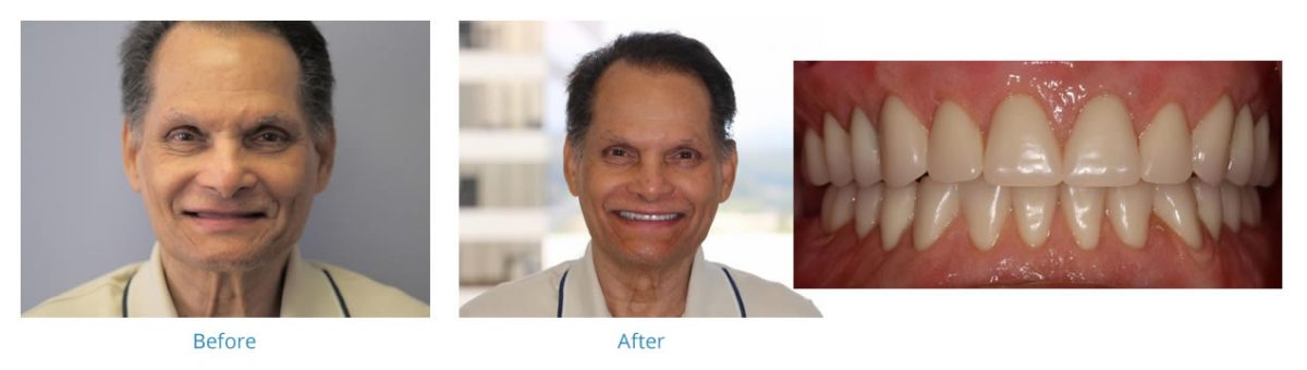 Dentures 1 - Before and After Gallery