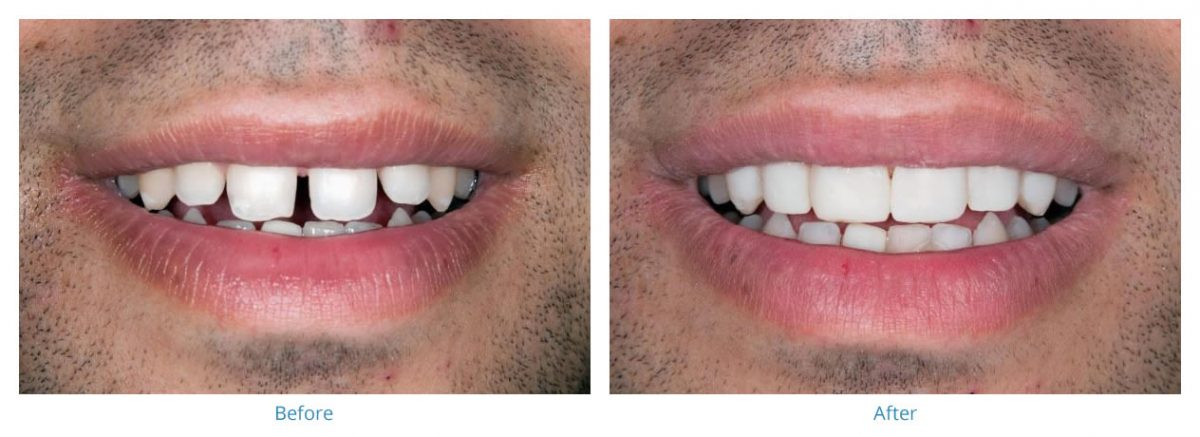 Porcelain Veneers 1 - Before and After Gallery