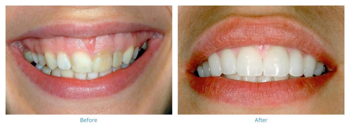 Porcelain Veneers 2 - Before and After Gallery
