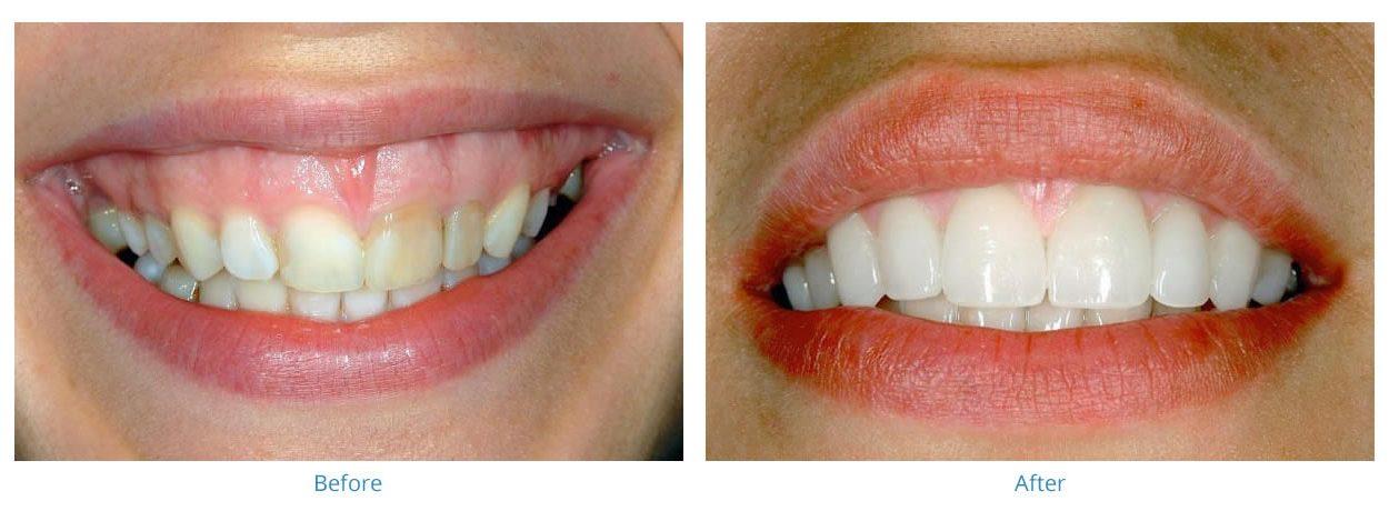 Dentist Atlanta GA | Midtown Implants, Veneers | Feather