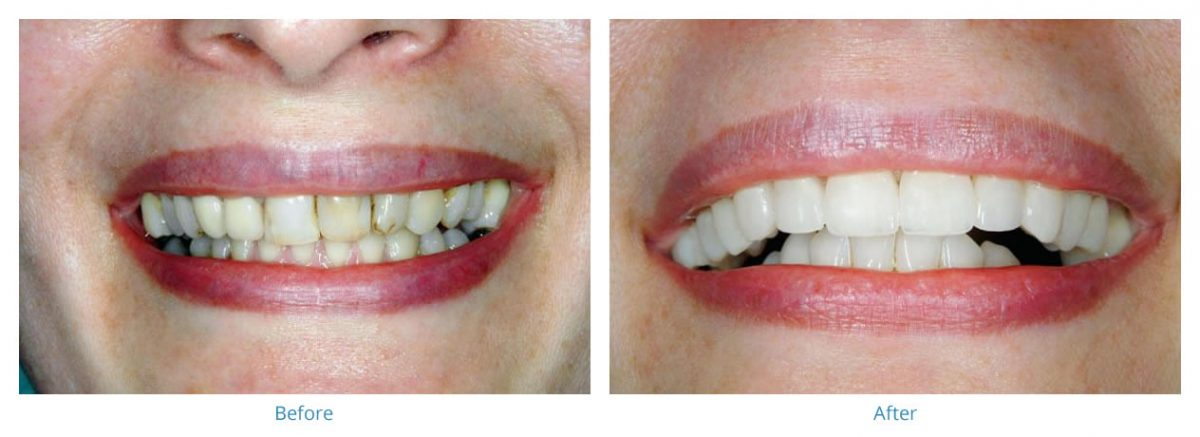 Porcelain Veneers 3 - Before and After Gallery