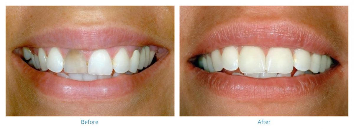 Porcelain Veneers 4 - Before and After Gallery