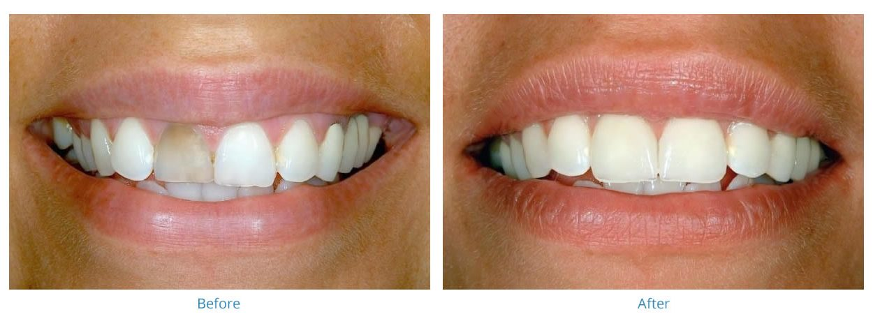 Porcelain Veneers - Before and After Gallery