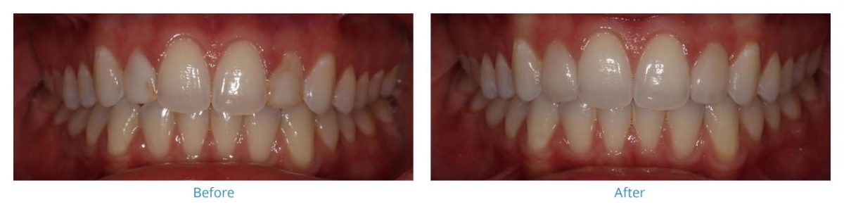Porcelain Veneers 6 - Before and After Gallery
