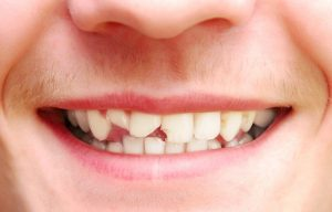 A close-up of a young man's chipped front teeth