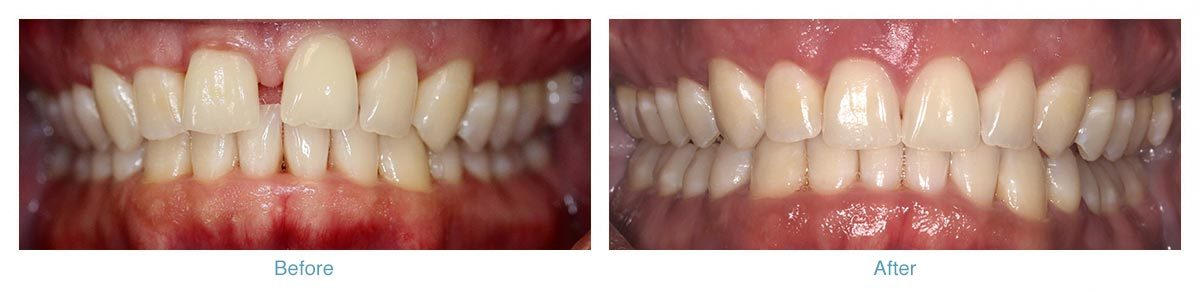 Invisalign - Before and After