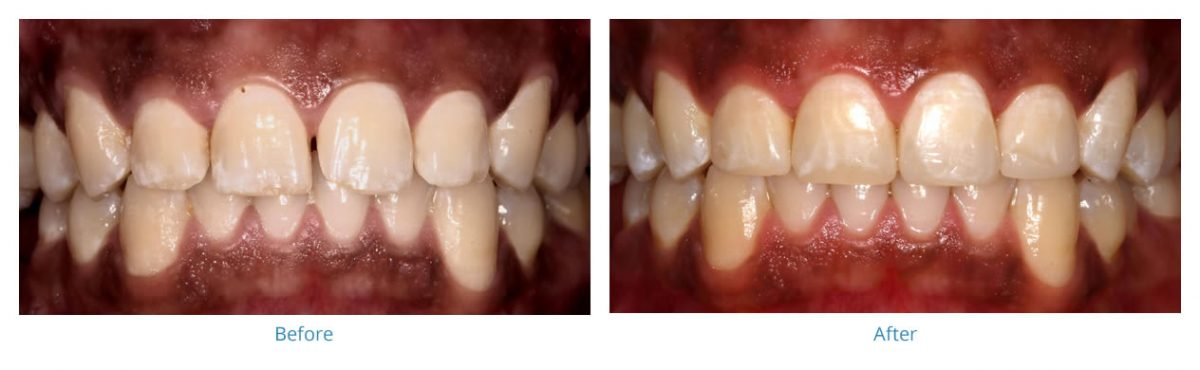 Composite Bonding 1 - Before and After Gallery