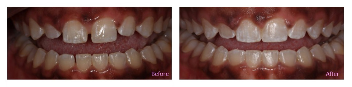 Invisalign - before and after photos