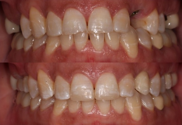 Dental implants - before and after photos