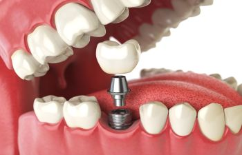 Single Dental Implant Atlanta GA