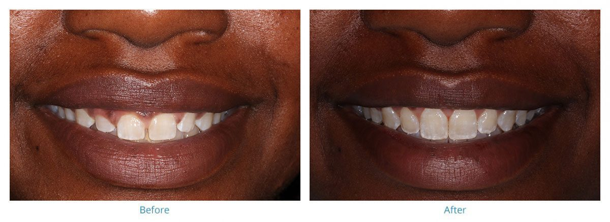 Invisalign and a Gum Lift