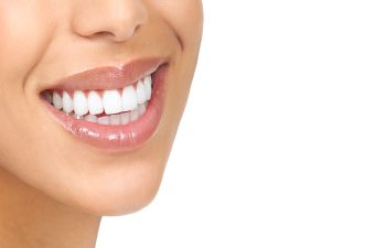 Dental Veneers Atlanta GA